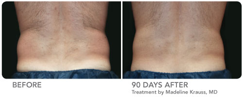 CoolSculpting Before and After Male Patient Low Back