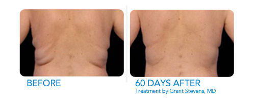 CoolSculpting Before and After Male Patient Middle Back