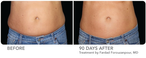 CoolSculpting Before and After Female Front