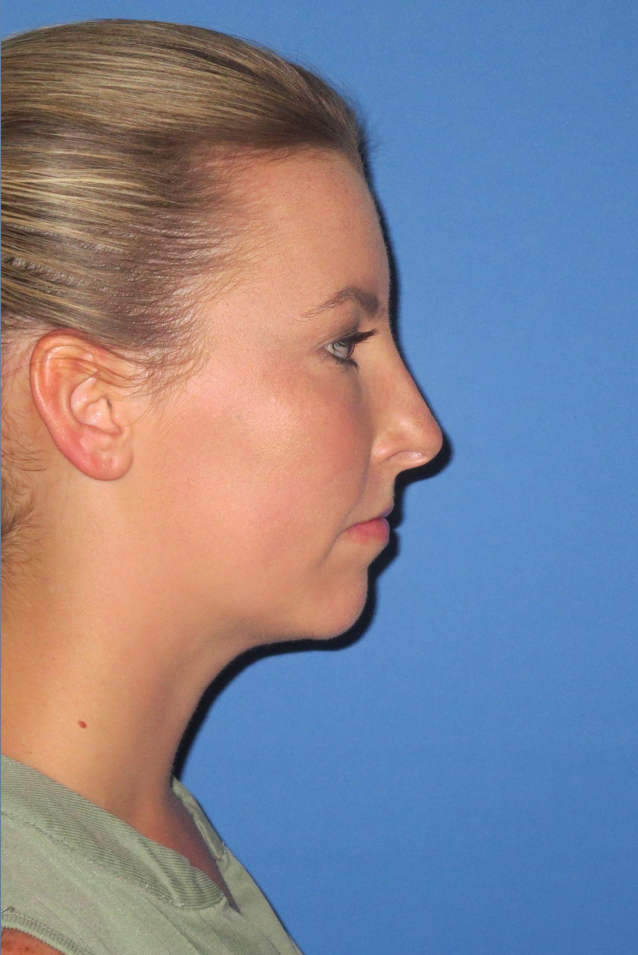 after chin lipo B.W.4