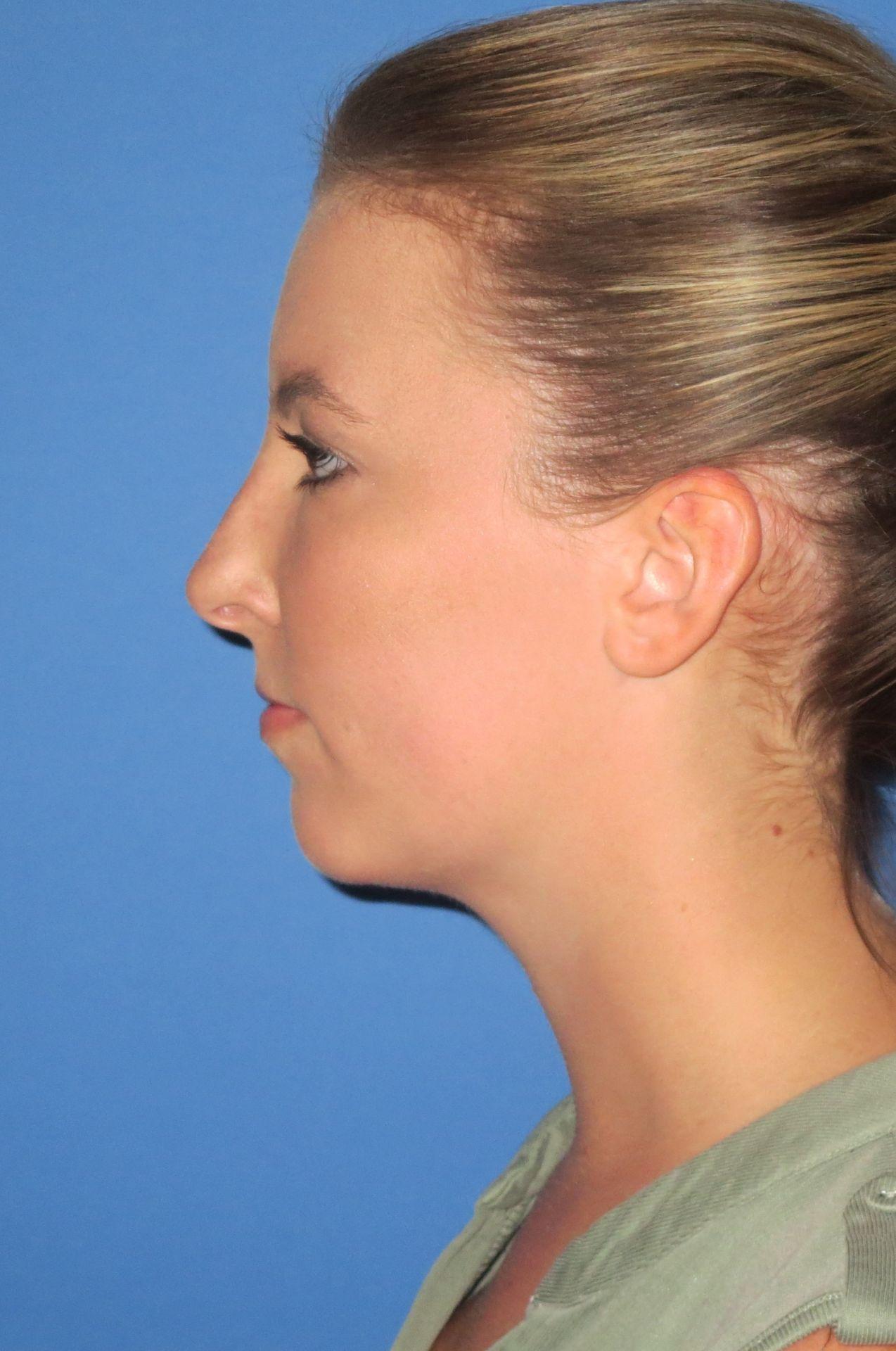 after chin lipo B.W.5