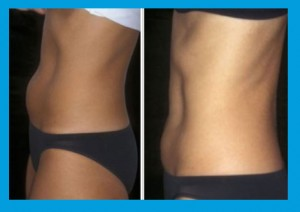 Coolsculpting Removing Belly Fat Before and After