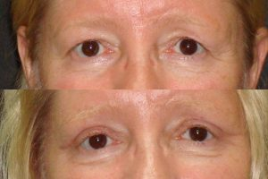 tampa eyelid surgery before and after