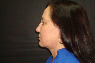 65 year-old Male Necklift After