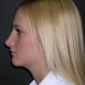 Tampa Rhinoplasty Patient After Photo