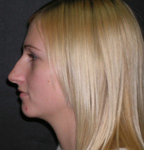 Tampa Rhinoplasty Patient Before Photo