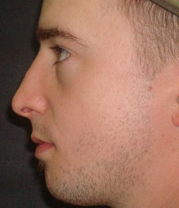 Male Rhinoplasty Patient After Photo