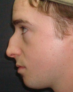 Male Rhinoplasty Patient Before Photo