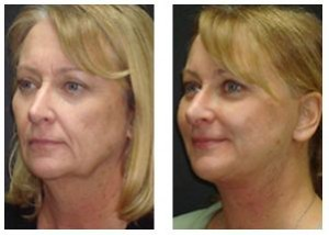 Wrinkle Reduction Patient Before and After Blonde Woman
