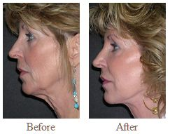 Before and After Necklift Patient