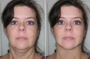 Necklift Female Patient Before and After