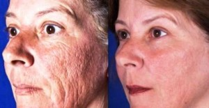 Laser Skin Patient Before and After