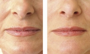 Wrinkles Around Mouth Before and After Procedure