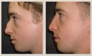 Rhinoplasty Patient Before and After Male Right View