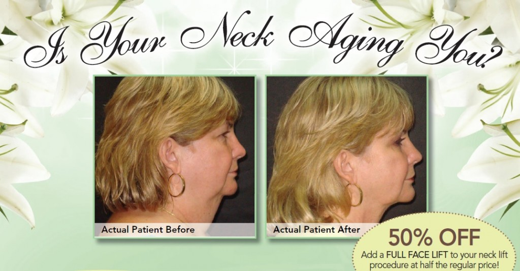 50 percent off Tampa facelift surgery