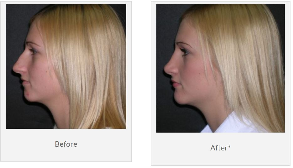 How To Select The Best Rhinoplasty Surgeon In Tampa