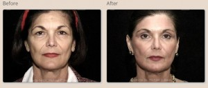 Eye Surgery Patient Before and After Front View