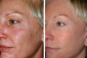 Laser Skin Resurfacing Patient Before and After Front Left