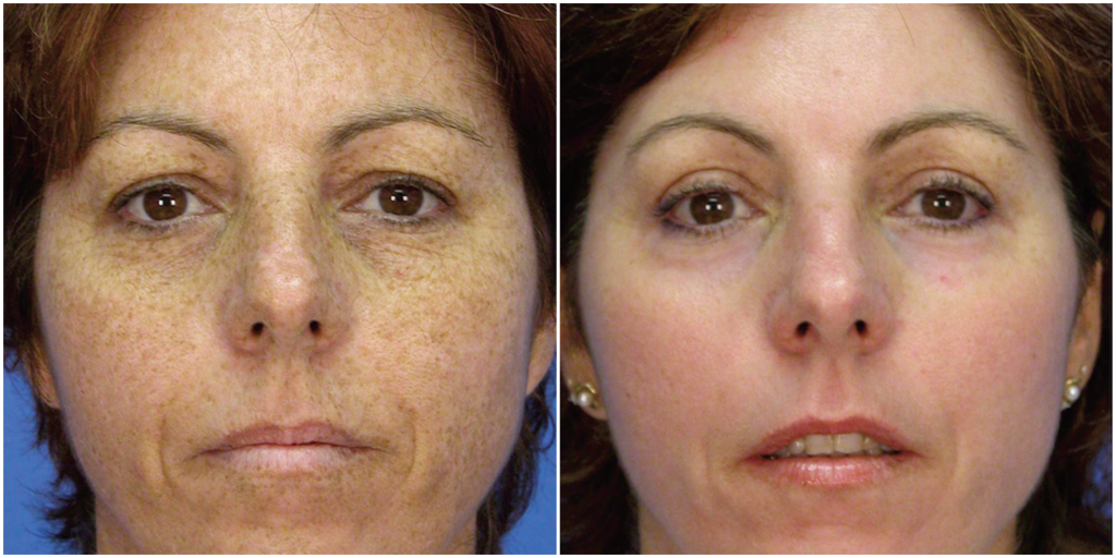 Microlaserpeel Female Patient Front Before and After