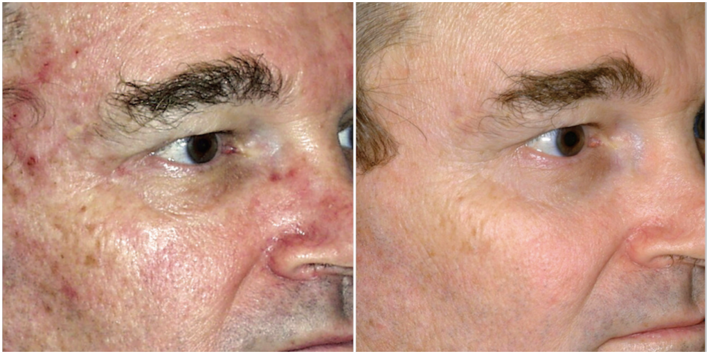 Microlaserpeel Male Patient Front Right Before and After