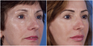 Microlaserpeel Female Patient Front Right Before and After