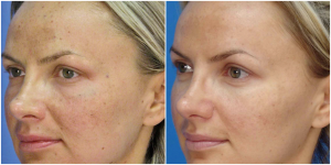 Microlaserpeel Female Patient Front Left Before and After