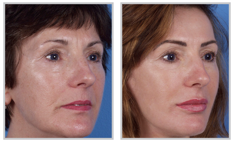 Laser Skin Resurfacing Patient Before and After