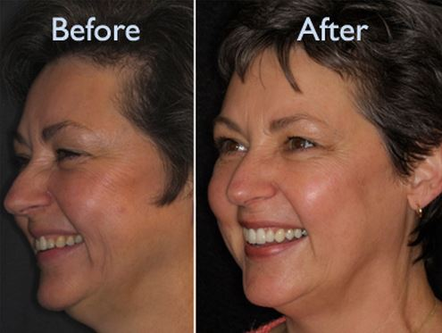 Dermal Fillers Patient Before and After Female