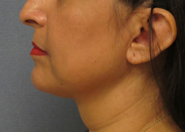 Non-Surgical NeckLift After Photo