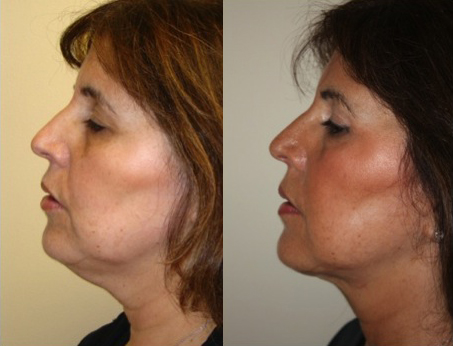 ThermiTight Non-surgical neck lift before and after