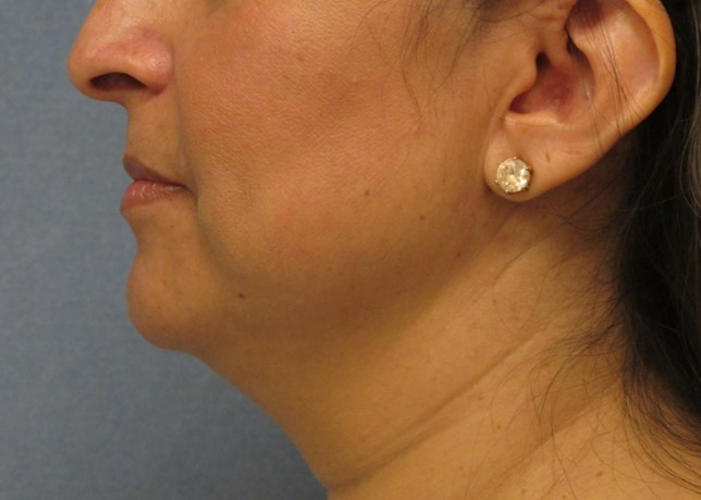 Non-Surgical Necklift Before Photo