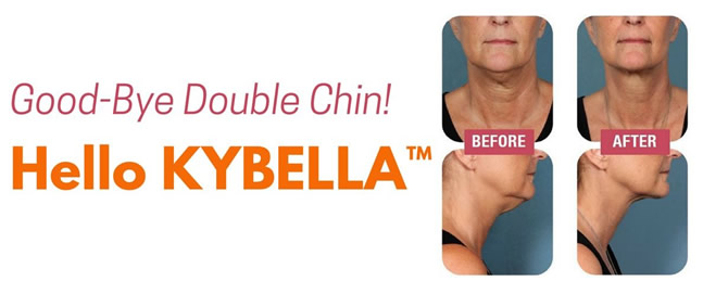 Kybella Patients Before and After