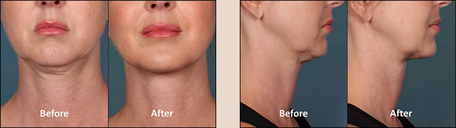 KYBELLA Patient Before and After Front