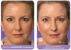 Juvederm Before and After Face