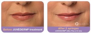 Juvederm Before and After Mouth