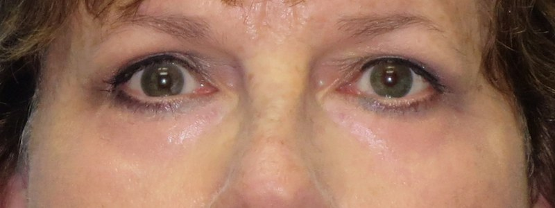 58-year-old-lower-and-upper-bleph-2-After