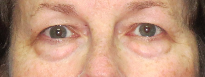58-year-old-lower-and-upper-bleph-2-Before