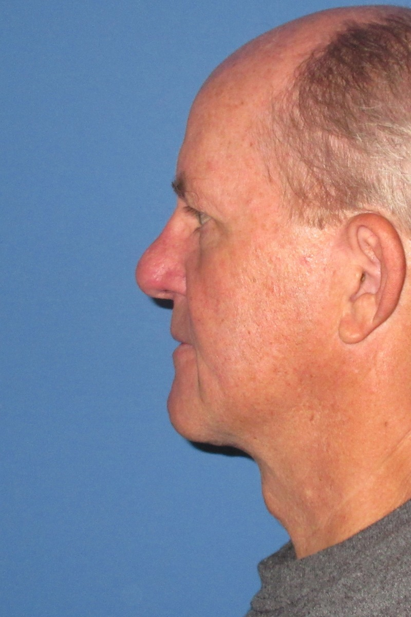 64 year-old Male Necklift After Left