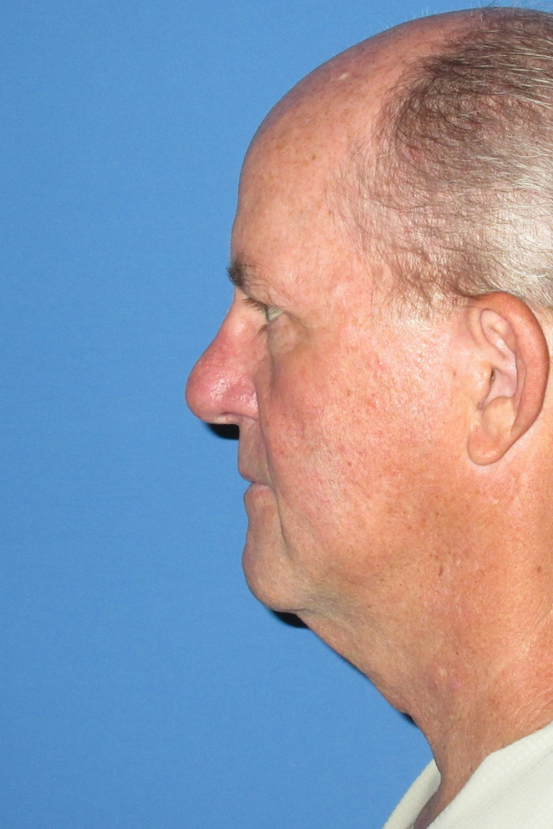 64 year-old Male Necklift Before Left