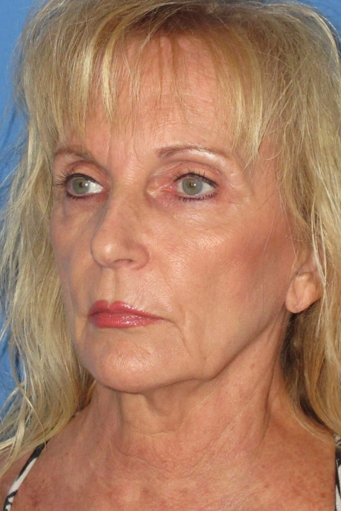 65-yr-old-facelift-and-full-face-laser-Before