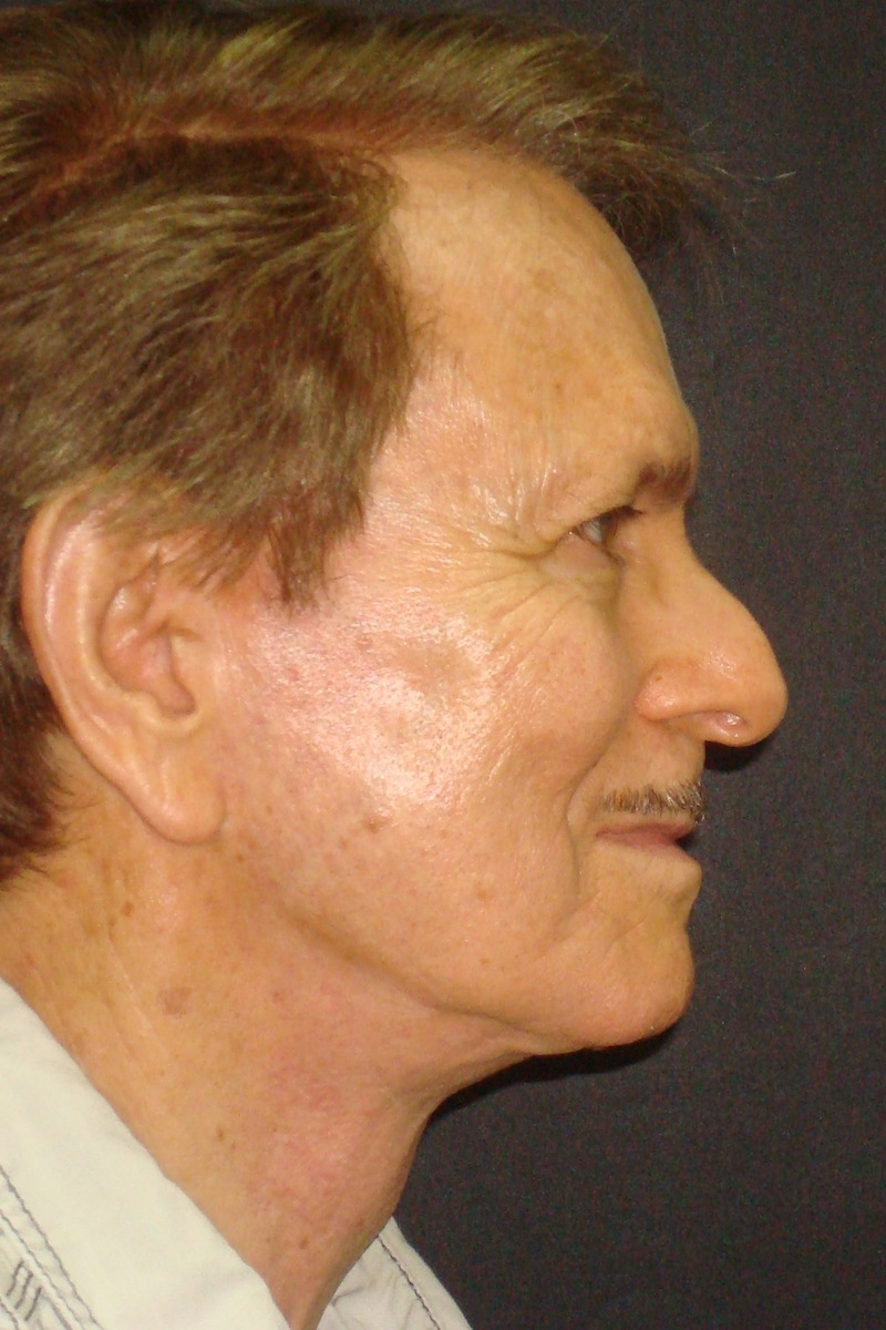 73 year-old Male Necklift After Right