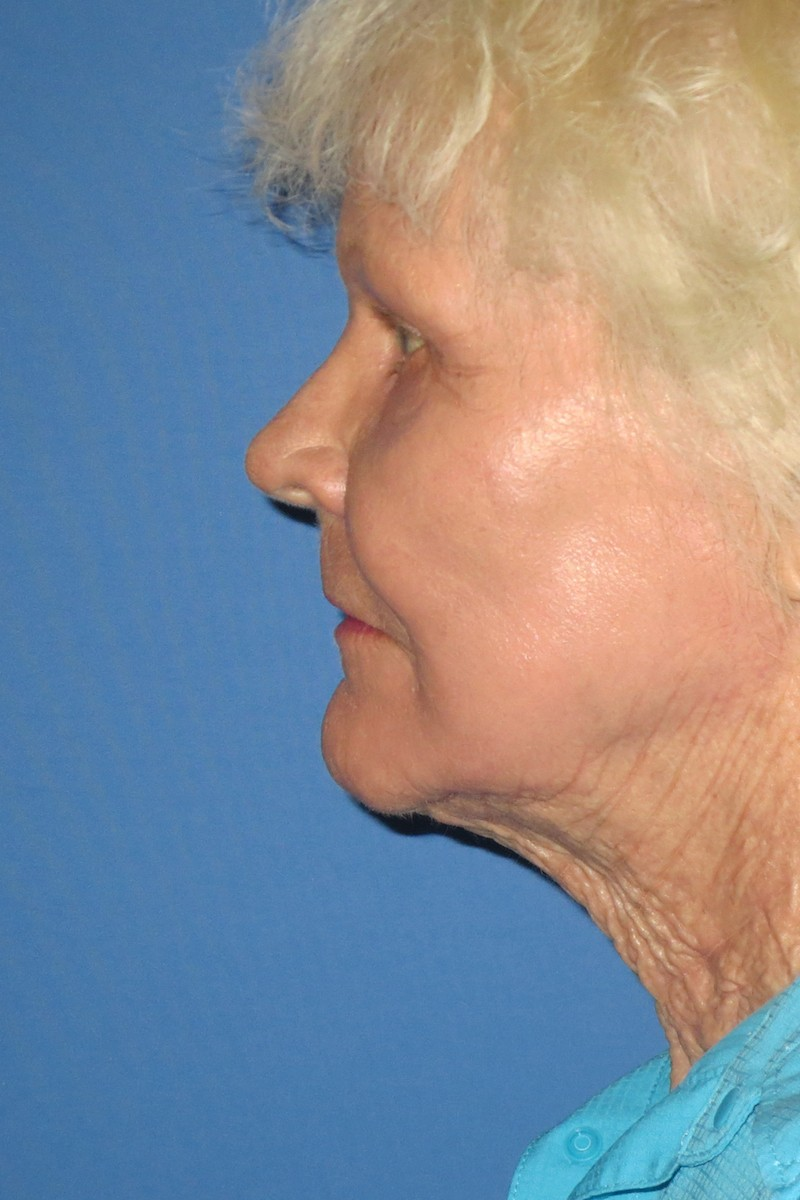 79 yo Full face laser Fat transfer submalar cervical lipo4 After