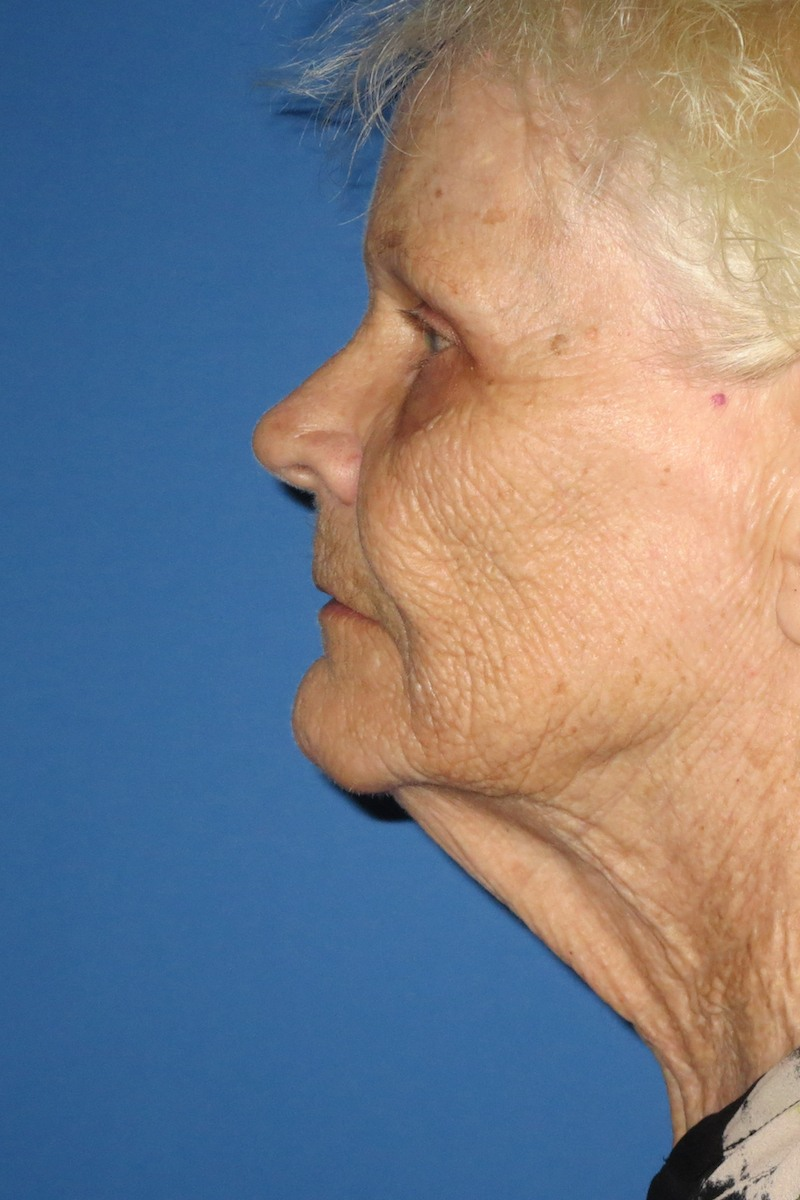 79-yo-Full-face-laser,-Fat-transfer-submalar,-cervical-lipo4-Before