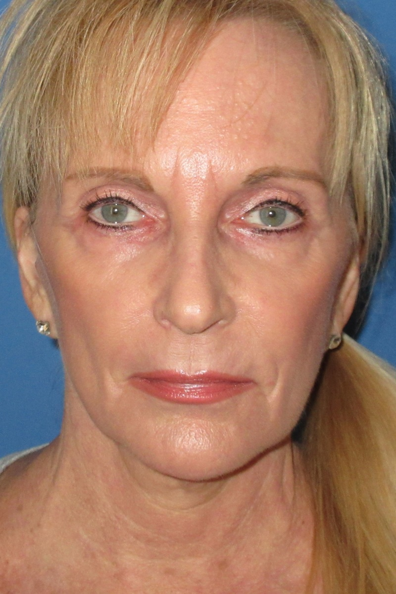 Facelift-and-full-face-laser-resurfacing-After