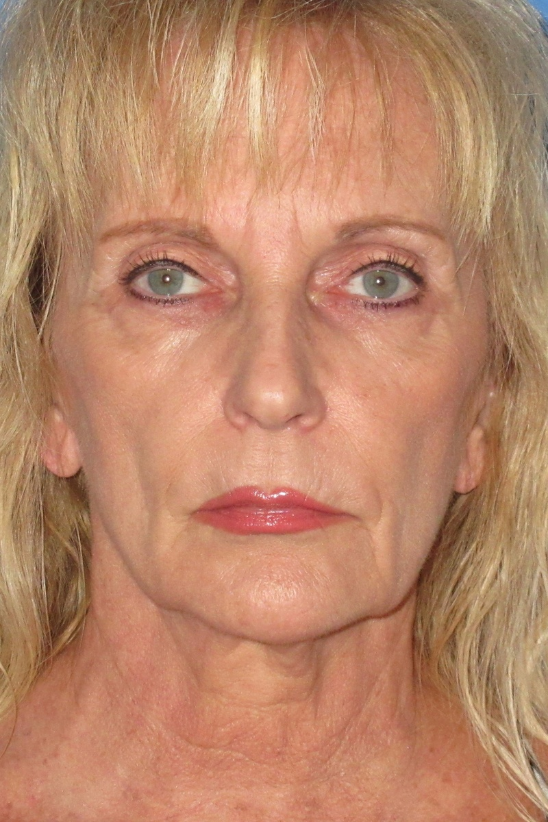 Facelift-and-full-face-laser-resurfacing-Before