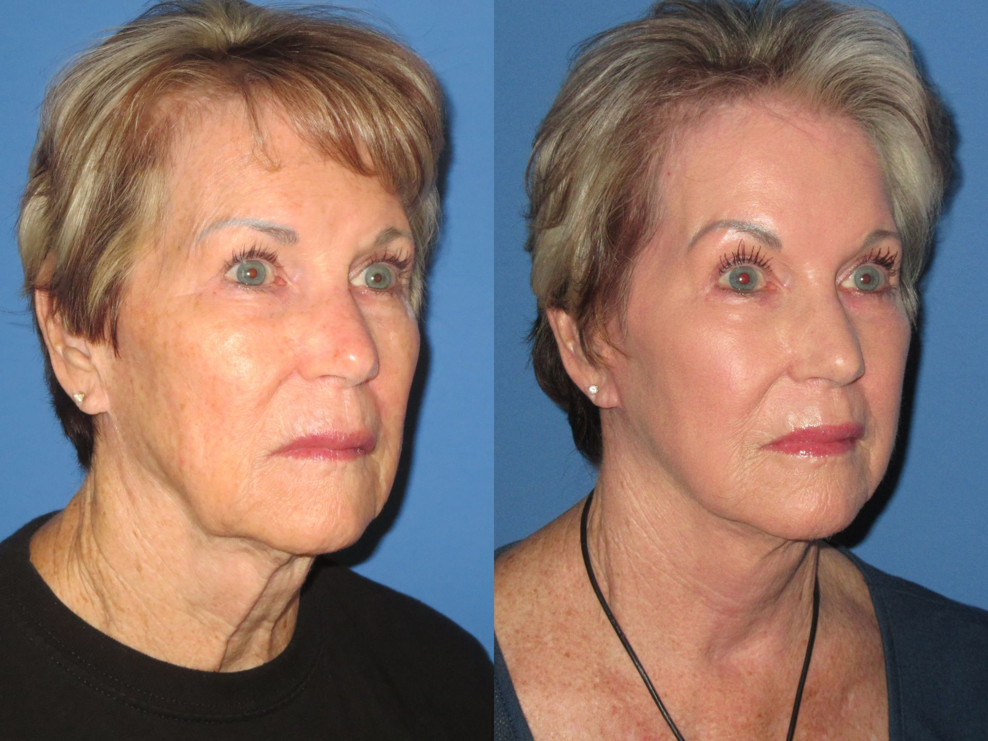 Mini Facelift Case 5 16 18 3 4 Before After 1