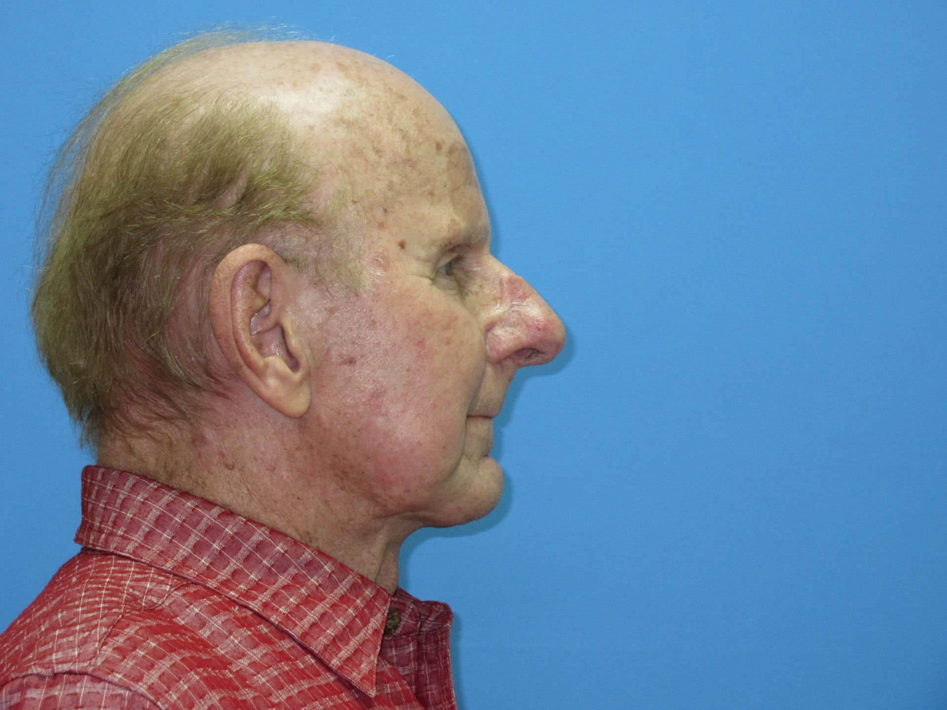 Neck Lift Chin Implant Case 5 16 18 Right After