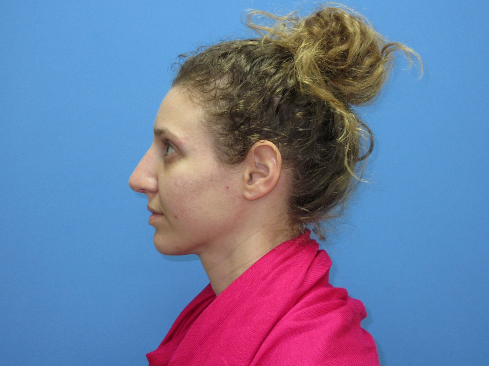 Rhinoplasty Case After Left Side
