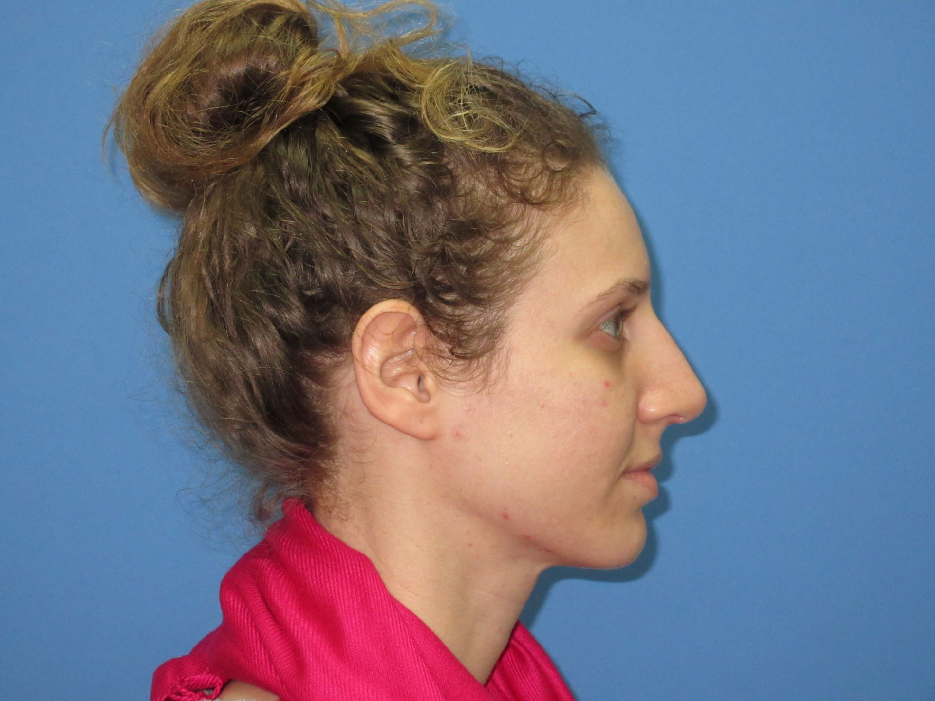Rhinoplasty Case After Right Side