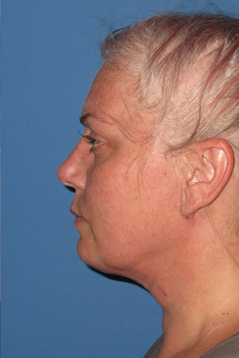 Female neck lift after side view one week post op